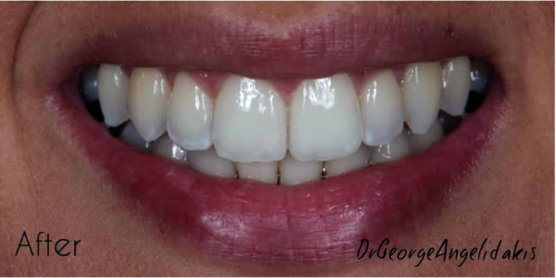 After Orthodontics 1