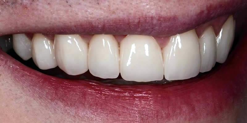 After Orthodontics 10