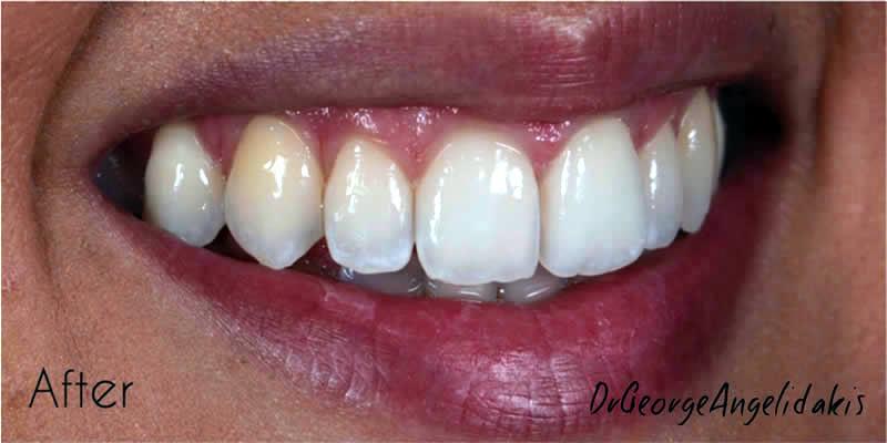 After Orthodontics 2