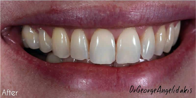 After Orthodontics 7