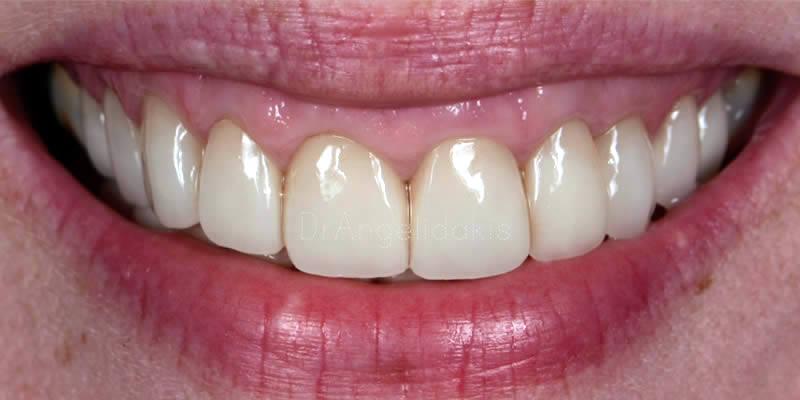 After Orthodontics 9