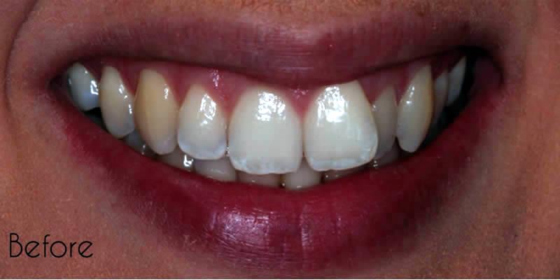 Before Orthodontics 1
