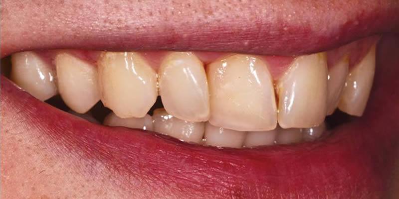 Before Orthodontics 10