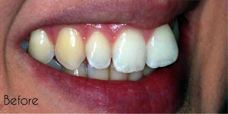 Before Orthodontics 2