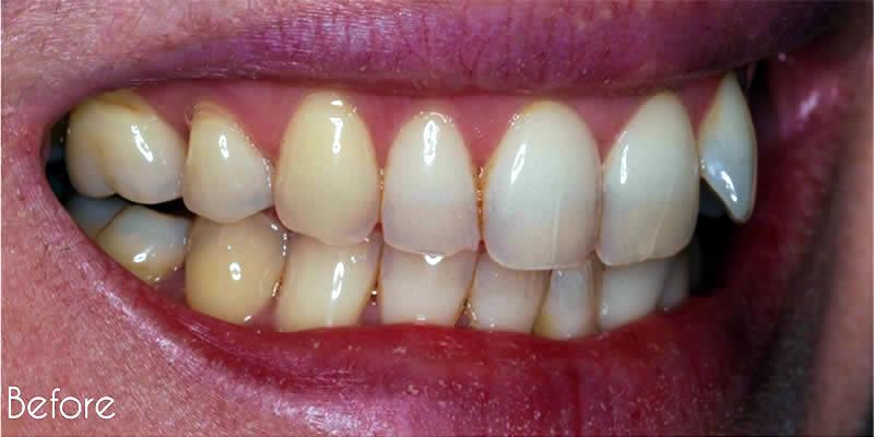 Before Orthodontics 7