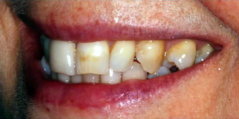 Before Orthodontics 8