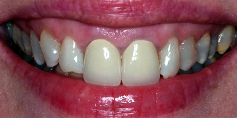Before Orthodontics 9