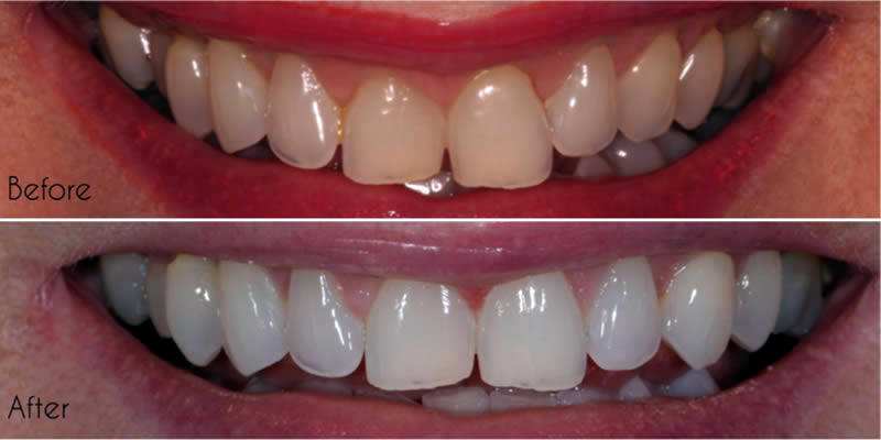 Before After Orthodontics 3