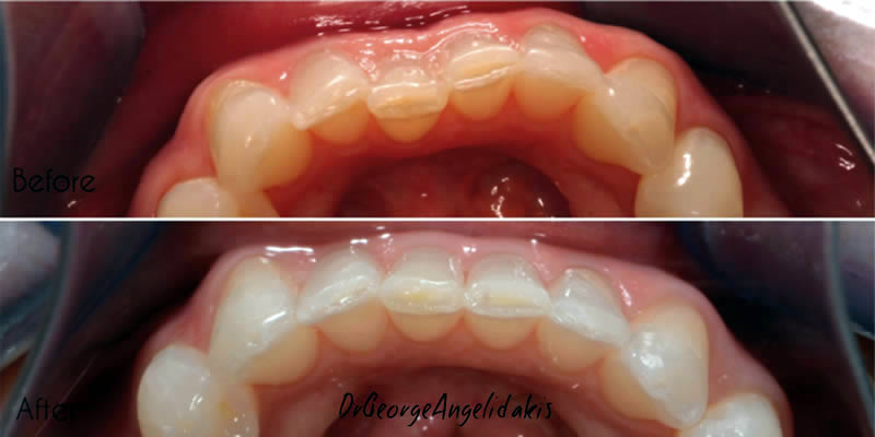 Before After Orthodontics 4