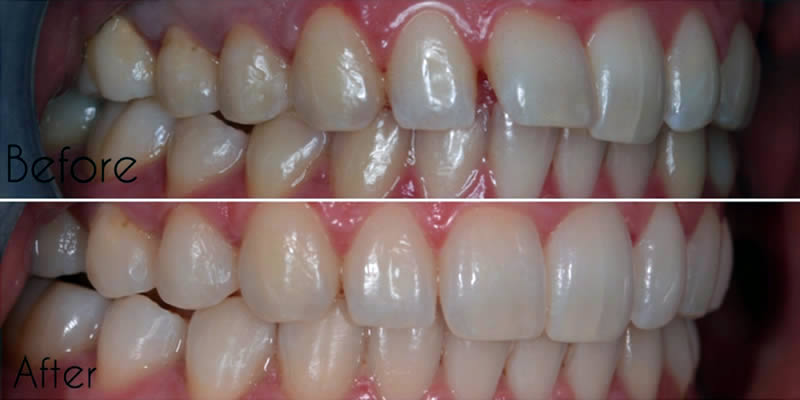 Before After Orthodontics 5