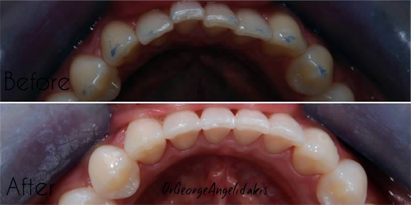 Before After Orthodontics 6