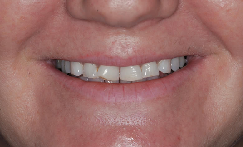 Invisalign & Veneers before and after