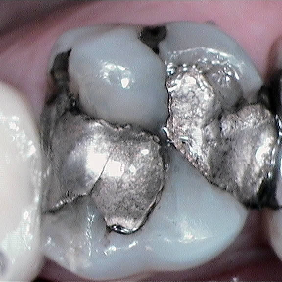 White Composite Filling to replace silver amalgam fillings - before