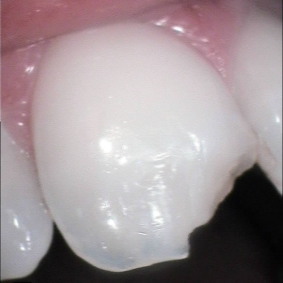 White composite resin filler used to reshape chipped tooth - before 1