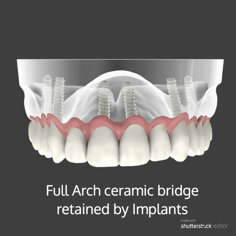 full arch ceramic bridge retained by implants