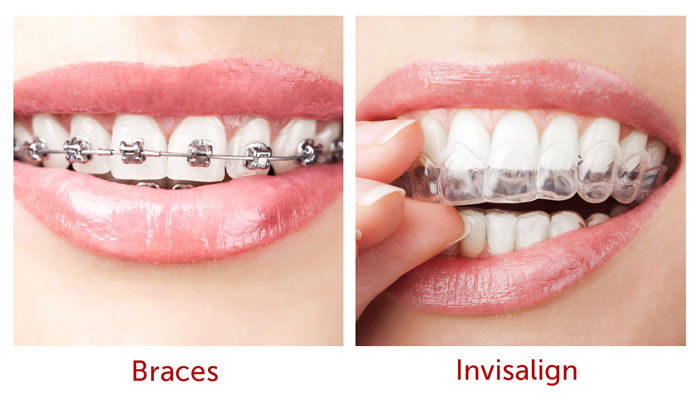 Orthodontics | West Malling Dental, Kent